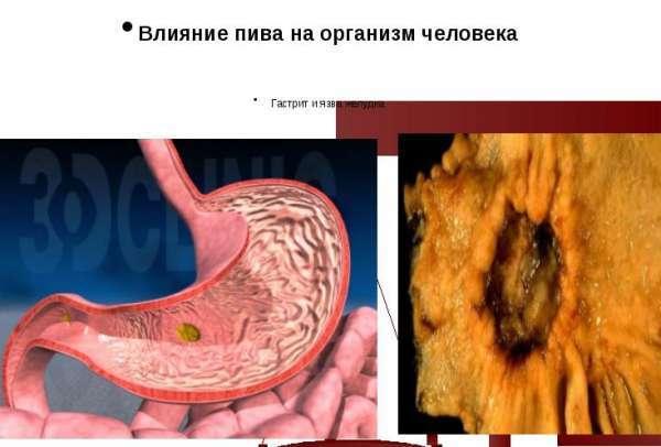 Почему после алкоголя болит желудок: причины и методы лечения недуга